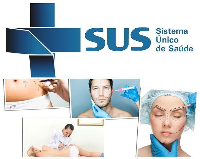 cirurgia-plastica-gratuita-sus